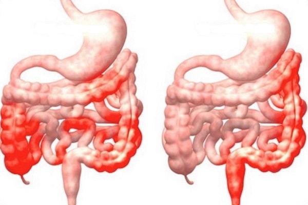 mức độ viêm đại tràng co thắt quyết định có điều trị được hay không