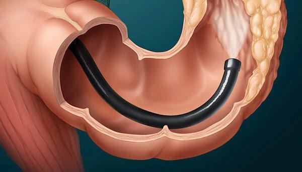 Tăng sức bền thành mạch để giảm triệu chứng viêm đại tràng