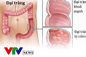VTV.vn: Lý giải những hiểu lầm bấy lâu nay về bệnh đại tràng co thắt