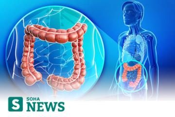 Soha.vn: Hiểu đúng về nguyên nhân, triệu chứng hội chứng ruột kích thích để tìm ra cách chữa hiệu quả